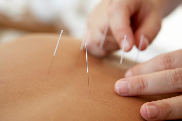 In overviews of clinical trials comparing acupuncture with placebo, there is a small, clinically irrelevant effect that cannot be distinguished from bias.