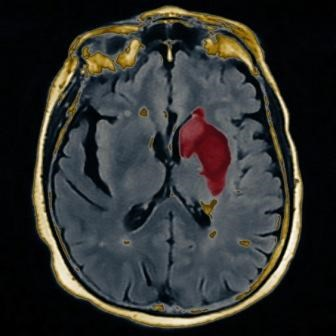 Stroke preventive measures should be considered in women with a history of migraine headache.