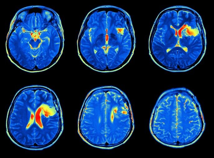 Study participants underwent the Montreal Cognitive Assessment scale test, and fMRI to assess function and memory.