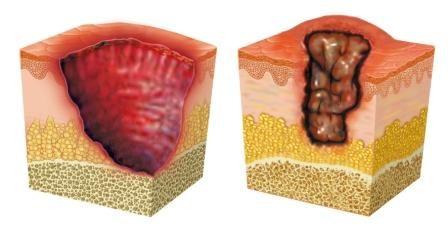 Pressure Area Pain Predicts Development of Pressure Ulcers