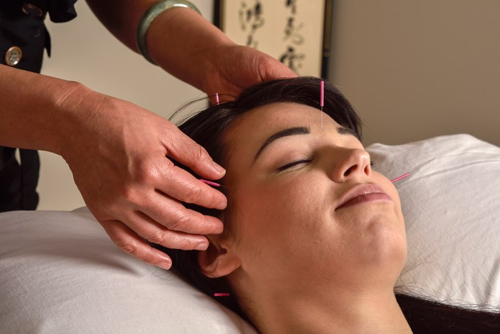 Acupuncture is commonly used in Chinese medicine to relieve pain from migraines.