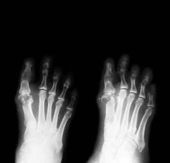 Diabetic Neuropathy: Updated Position Statement by the American Diabetes Association