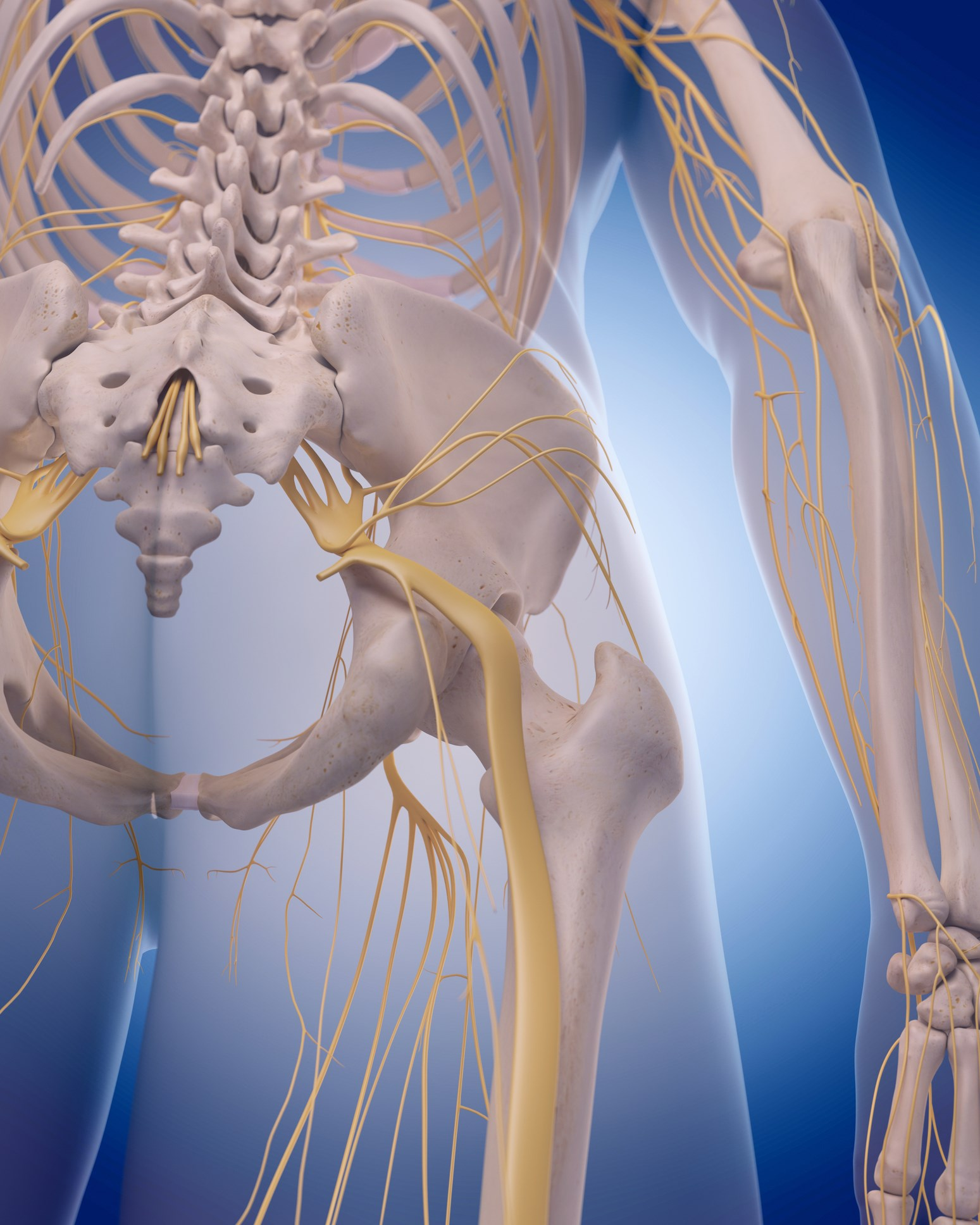 Pregabalin for Sciatica: Is It Effective?