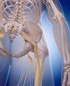 Sciatic Plus Femoral Nerve Blocks Effective on Total Hip Arthroplasty-Related Pain