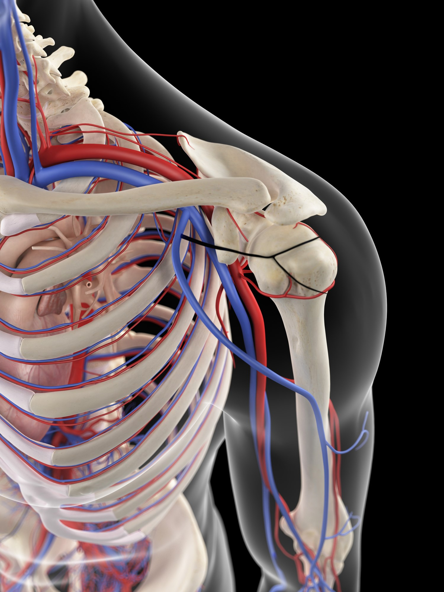 The thoracic outlet is defined by an area through which the subclavian vein, subclavian artery, and brachial plexus all emerge as a neurovascular bundle.
