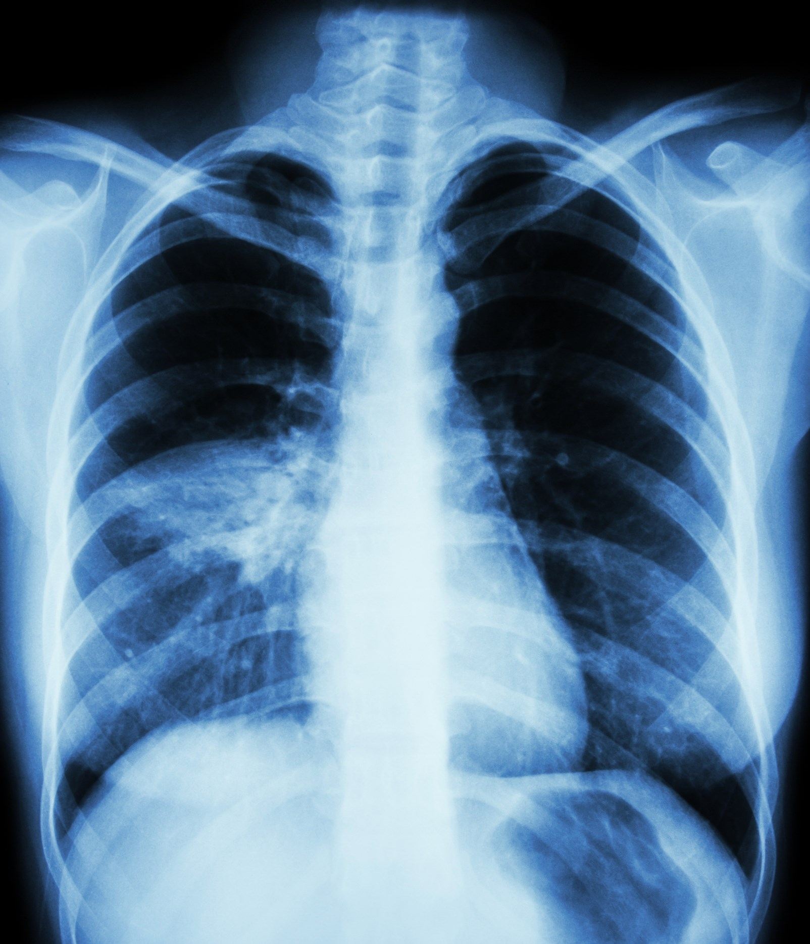 Patients who used benzodiazepines for 30 days or less were at greatest risk for pneumonia.