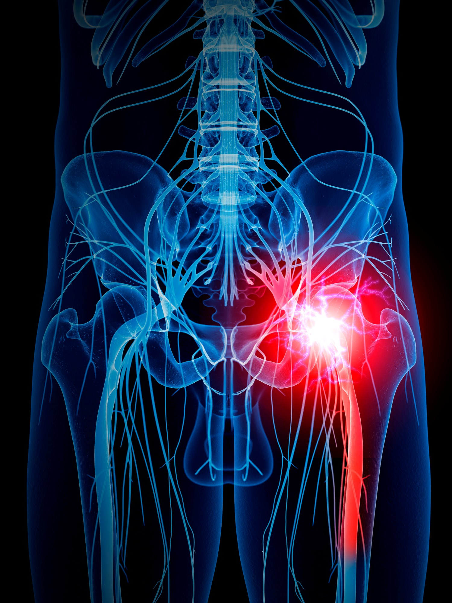 The annual prevalence of sciatica is as high as 45%, although rates vary widely because of inconsistent definitions and terms used to describe the condition.
