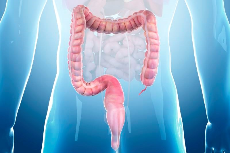 Colon Cleansing Regimens in Inflammatory Bowel Disease: An Overview