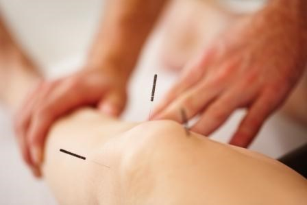 No Added Benefit for Acupuncture in Routine Rehabilitation After Total Knee Replacement