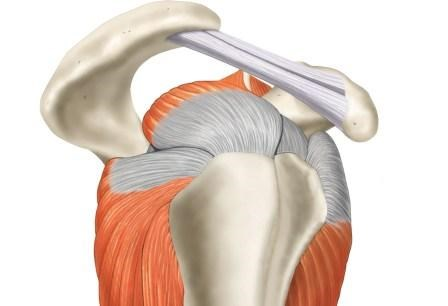 Injections of Corticosteroids vs Local Anesthetic in Rotator Cuff-Related Shoulder Pain