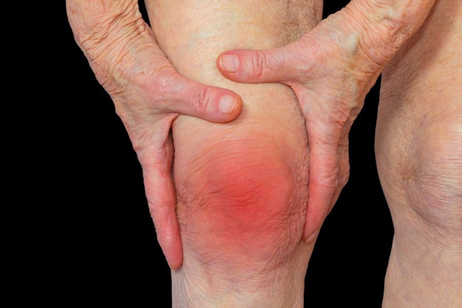 Researchers examined the association between knee pain and function and depressive symptoms.