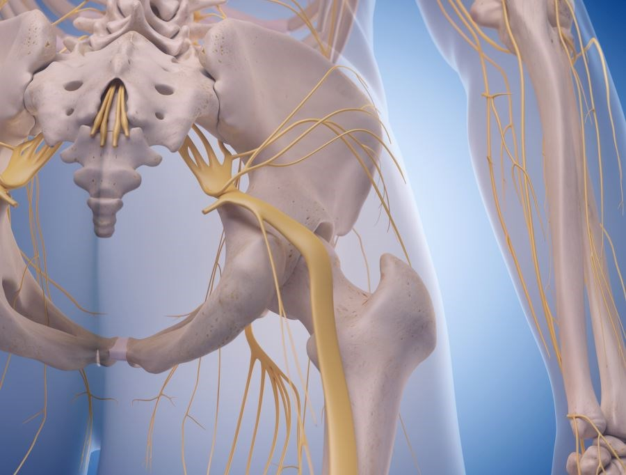 At the end of the study period, 55% of patients improved in both the total sample and the sciatica group.
