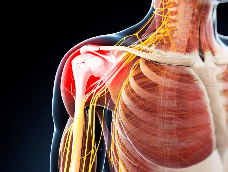 Investigators randomly assigned patients with referred shoulder pain to receive pressure with a mechanically assisted instrument or no pressure with the same instrument.