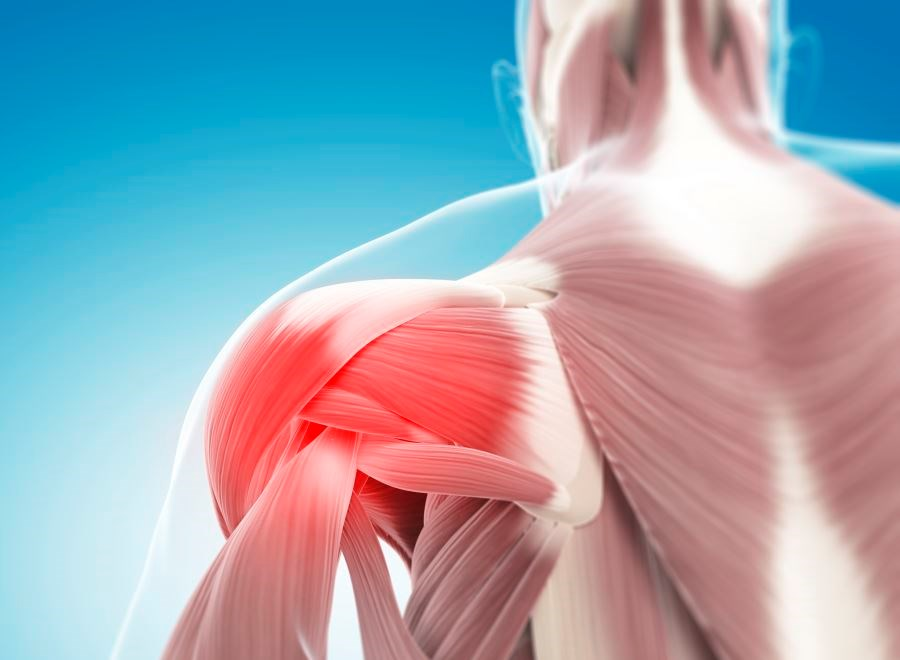 Investigators enrolled 189 patients with chronic musculoskeletal pain on long-term opioid therapy and reporting severe pain intensity.