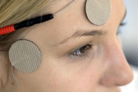 Transcutaneous Electrical Nerve Stimulation May Be Effective for Migraine