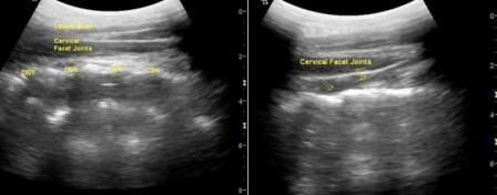 ultrasound cervical facet joint