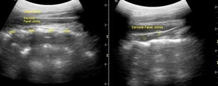 Cervical Facet Plane Block: The When, How, on Whom