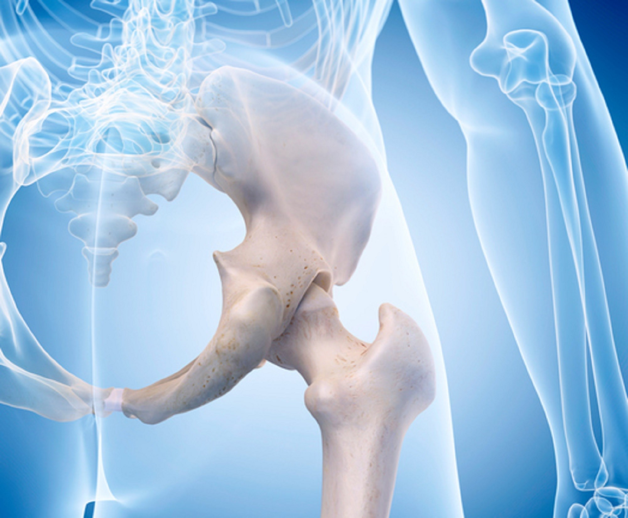 "Hip Injury and ""Giving Way"" Associated With Pain Exacerbation in Hip Osteoarthritis"