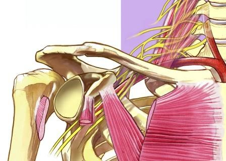 Factors Associated With Suboptimal Interscalene Brachial Plexus Block for Arthroscopy