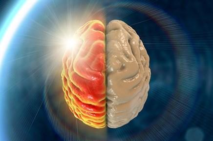 Hemicrania Continua: Diagnosis and Treatment