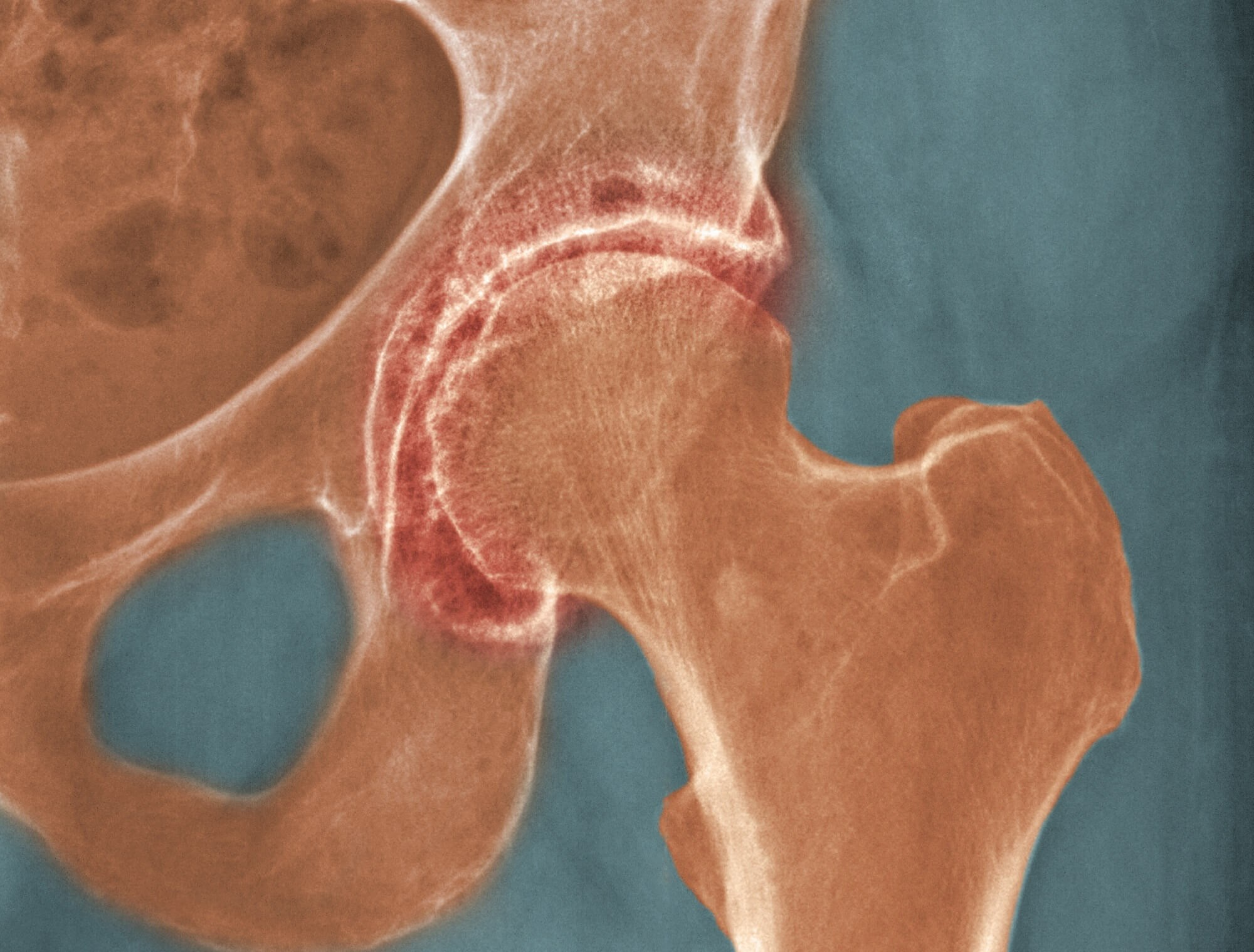 Pain Catastrophizing Associated With Quality of Life in Hip Osteoarthritis