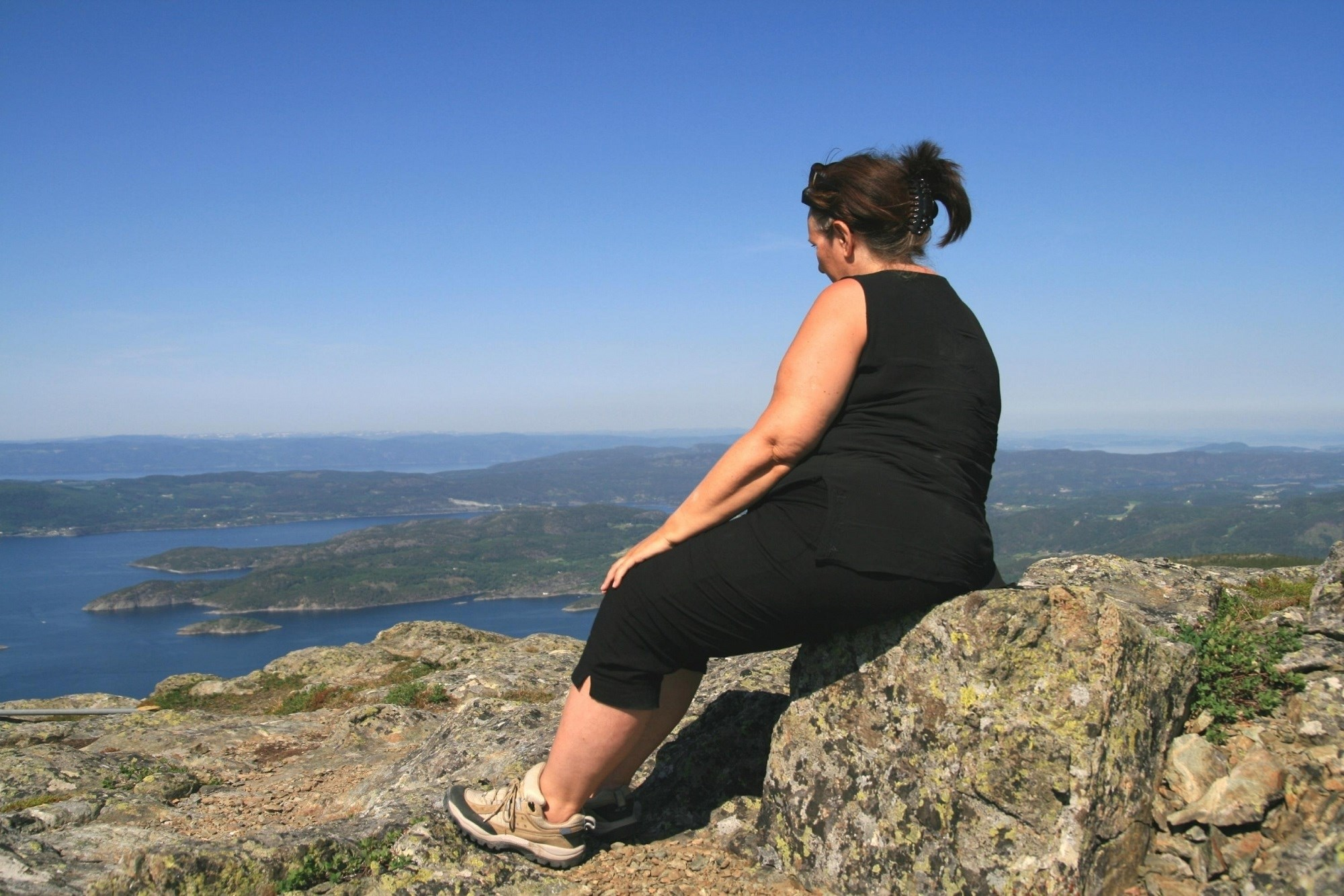 Depression and Obesity Associated With Chronic Hip Pain