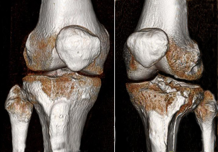 Open Reduction Internal Fixation Orif Of Tibial Plateau Fracture